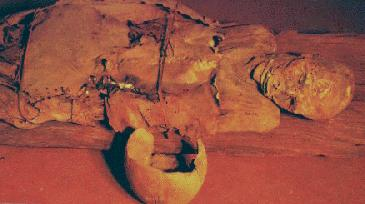 Guanche mummy remains